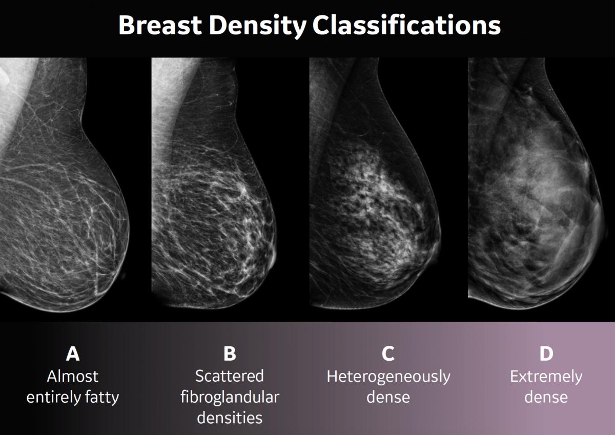 Breast Density In Enid Ok St Mary S Regional Medical Center